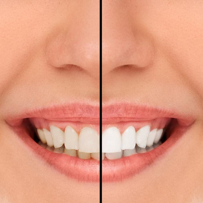Teeth Whitening in Temple Texas