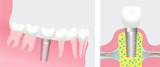 Dental Implants Temple | Temple Dental Trails