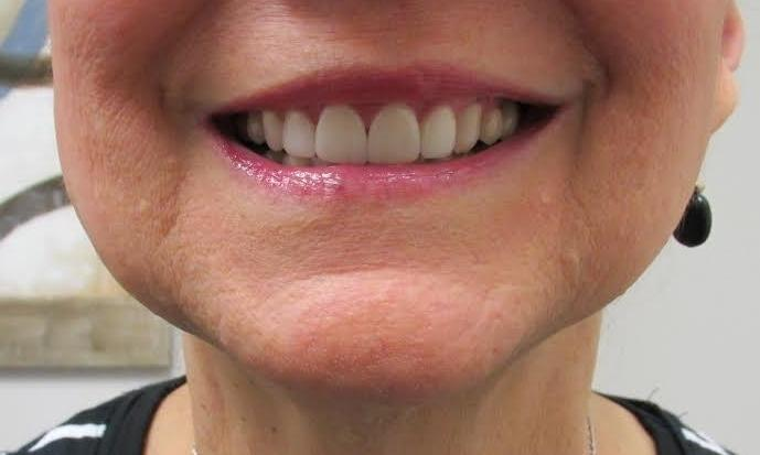 Veneers-to-the-Rescue-After-Image