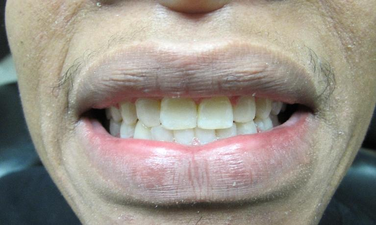 Orthodontics-Severe-Spacing-After-Image