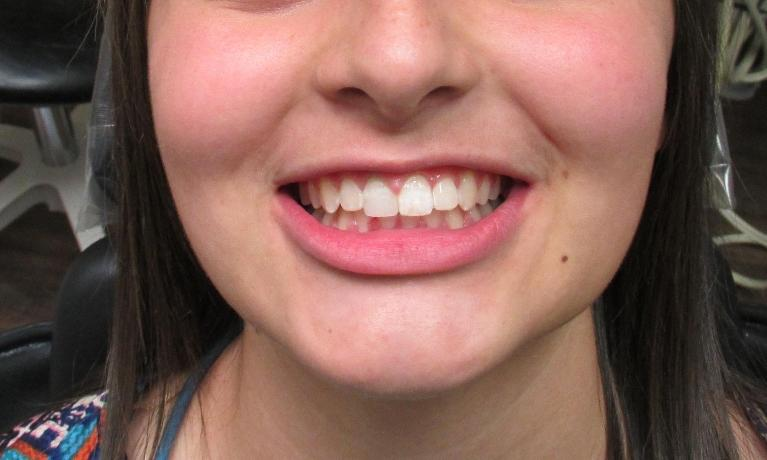 Orthodontics-and-Professional-Teeth-Whitening-After-Image