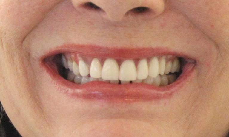 Partial-Dentures-to-Close-Gap-in-Teeth-After-Image