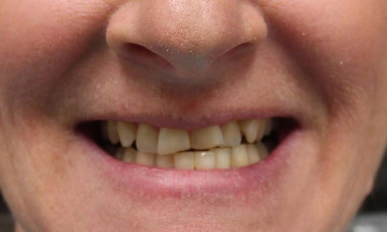 New-Smile-Yes-Please-Before-Image