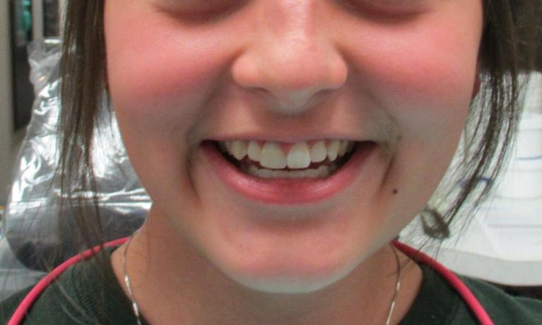 Orthodontics-and-Professional-Teeth-Whitening-Before-Image