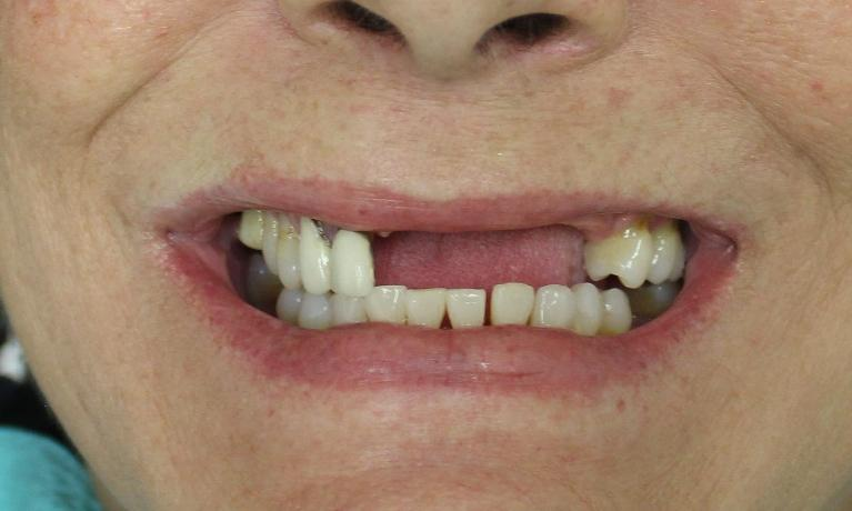 Partial-Dentures-to-Close-Gap-in-Teeth-Before-Image
