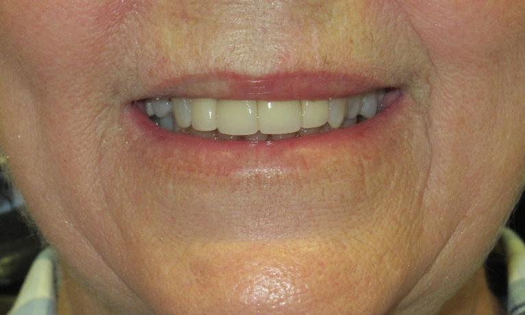 Cosmetic-Dentistry-Using-Dental-Crowns-After-Image