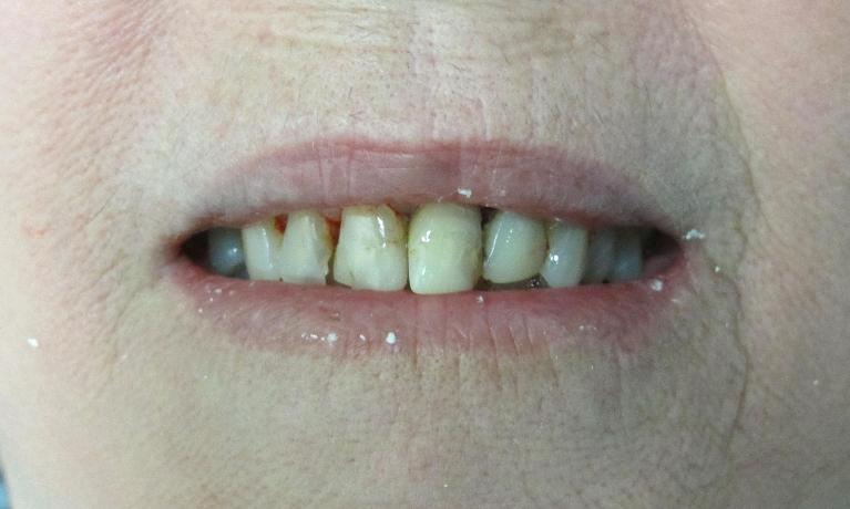 Cosmetic-Dentistry-Using-Dental-Crowns-Before-Image
