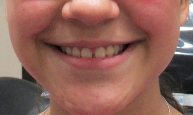 Short-Term-Orthodontics-to-Close-Gaps-Before-Image