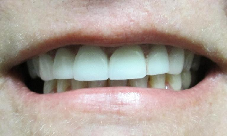 Cosmetic-Dentistry-Porcelain-Crowns-and-Bridges-After-Image
