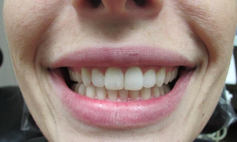Straighter-Teeth-With-Invisalign-After-Image