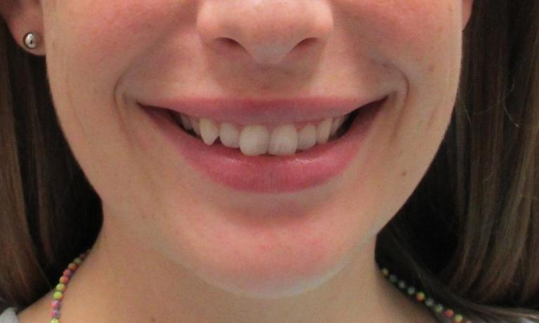 Straighter-Teeth-With-Invisalign-Before-Image