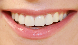 close up of bright smile I cosmetic dentistry temple dental trails