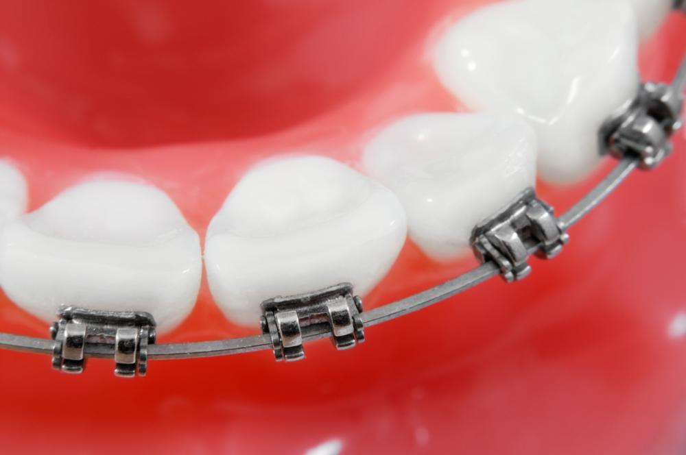 image of a younger individuals teeth with newly fitted braces temple tx