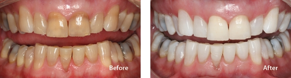 KöR Teeth Whitening Temple | Temple Dental Trails