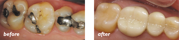Tooth Colored Fillings Temple | Temple Dental Trails