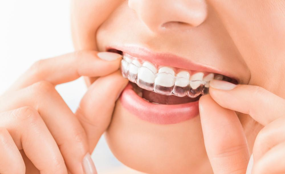 image of invisible braces | Temple TX
