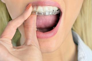Woman putting on Invisalign | Temple TX