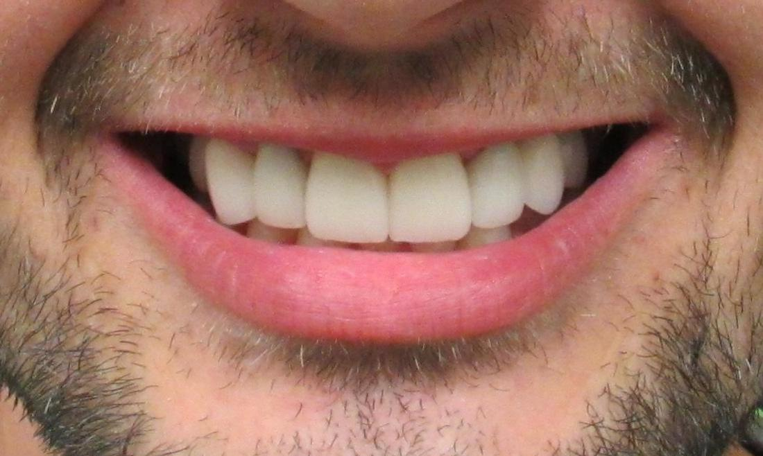 image of the same teeth after dental implants | temple tx