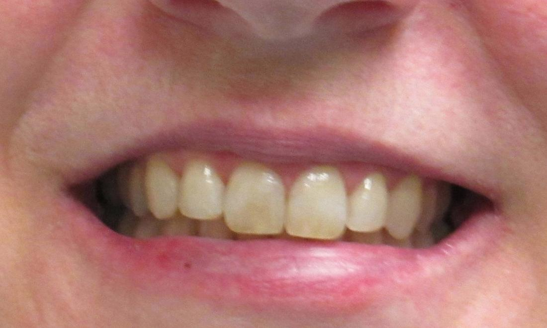 image of the same teeth after invisalign clear aligners | temple tx