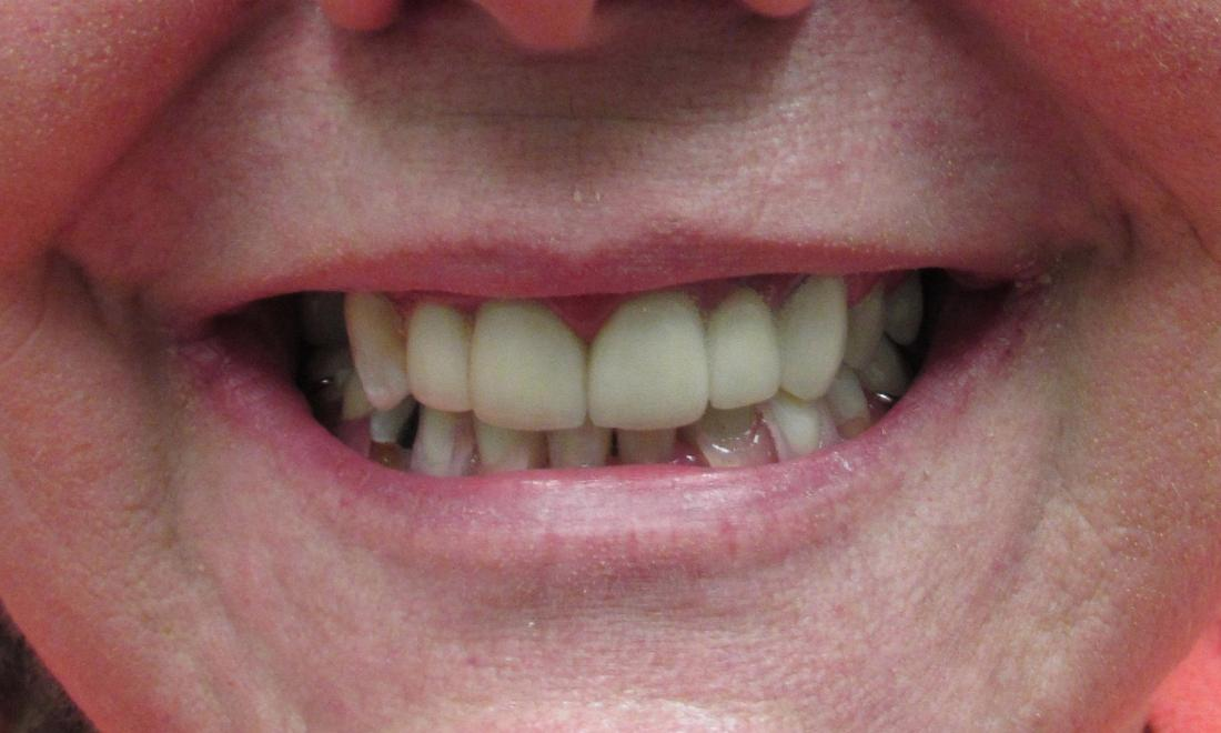 image of the same teeth after crowns and bridges | temple tx
