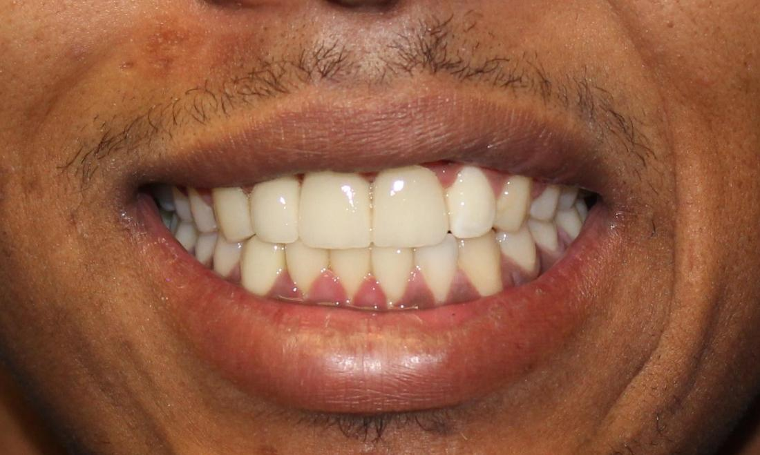 picture of the same teeth after a root canal and dental implants & crowns | temple tx