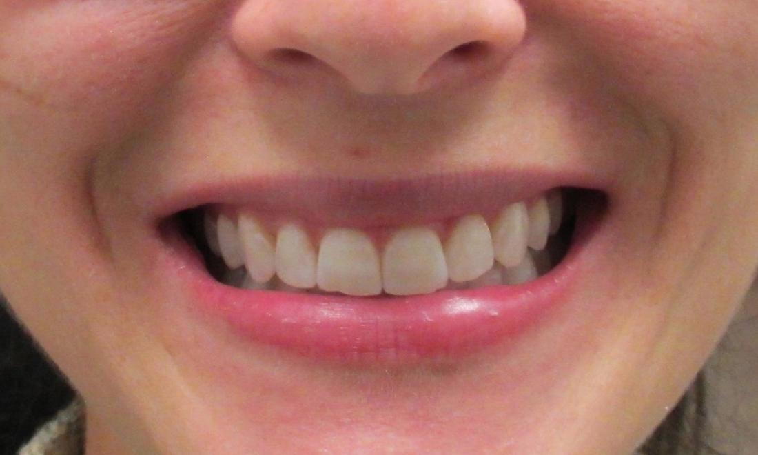Beautiful Smiles by Temple Dental Trails