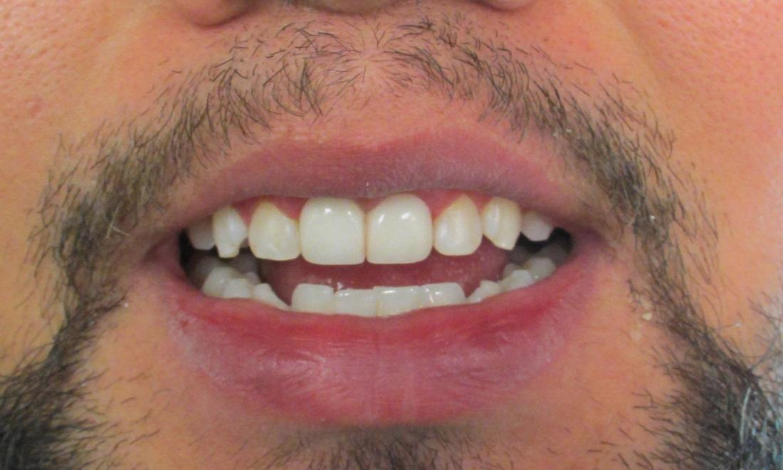 after image of the same teeth after crowns and Zoom whitening | temple tx