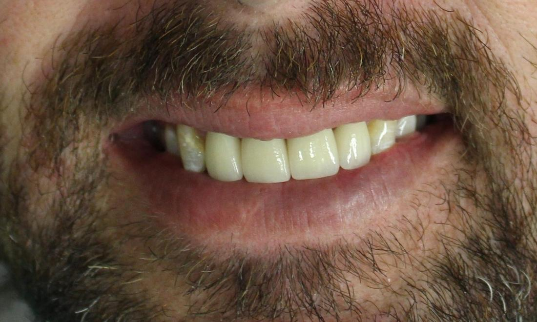 image of the same teeth after cavity repair, porcelain crowns, and a straighter smile | temple tx