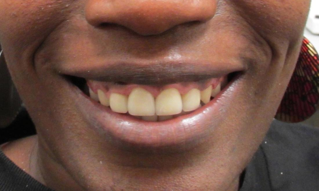 image of the same teeth after dental crowns | temple tx