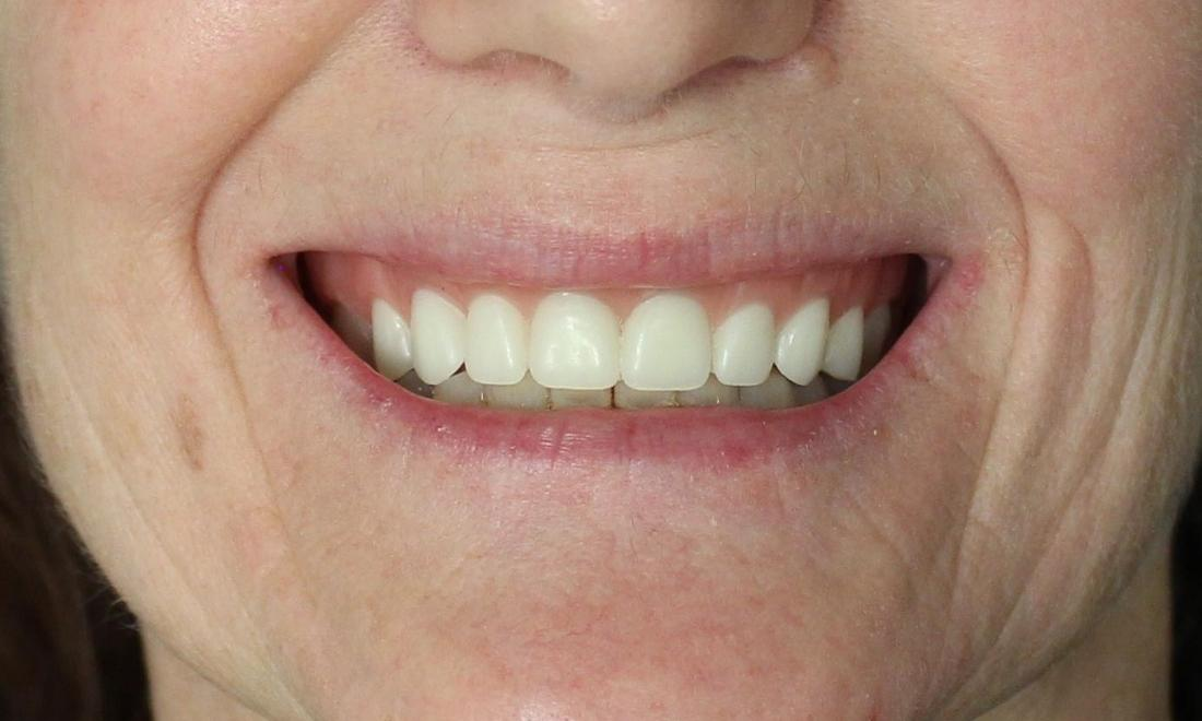 image of new dentures for a better smile | temple tx