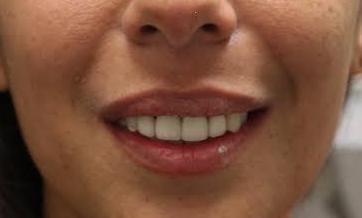 image of the same teeth after porcelain crowns | tooth colored fillings | Zoom whitening | temple tx
