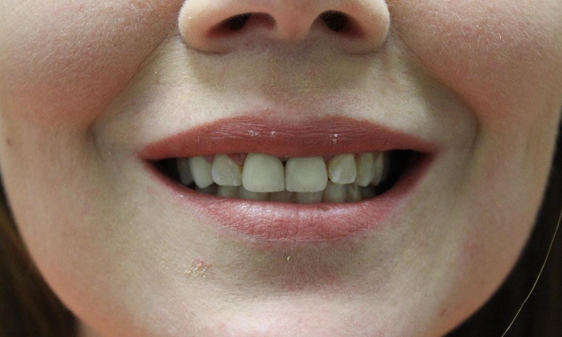 image of the same teeth after porcelain crowns | temple tx