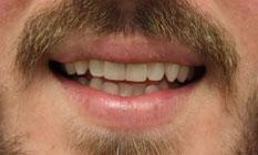 after image of the same teeth after dental veneers | temple tx
