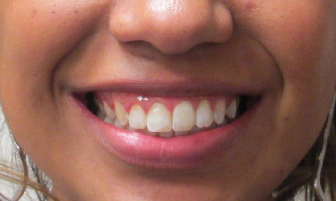after image of the same teeth after orthodontic treatment | temple tx