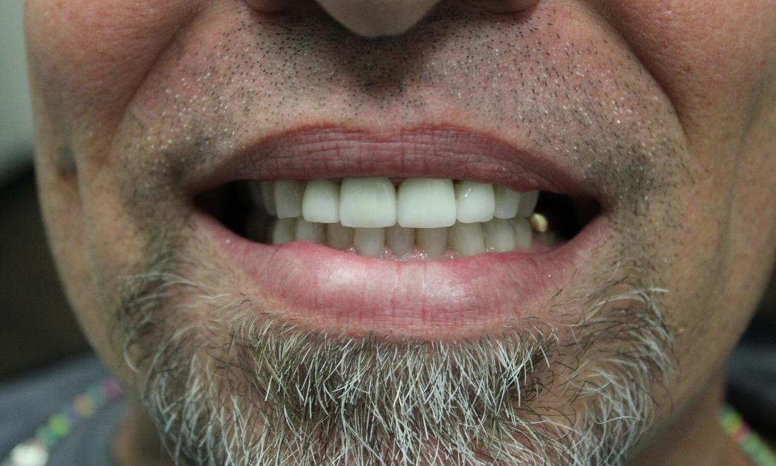 image of the same teeth after zoom whitening & porcelain crowns | temple tx