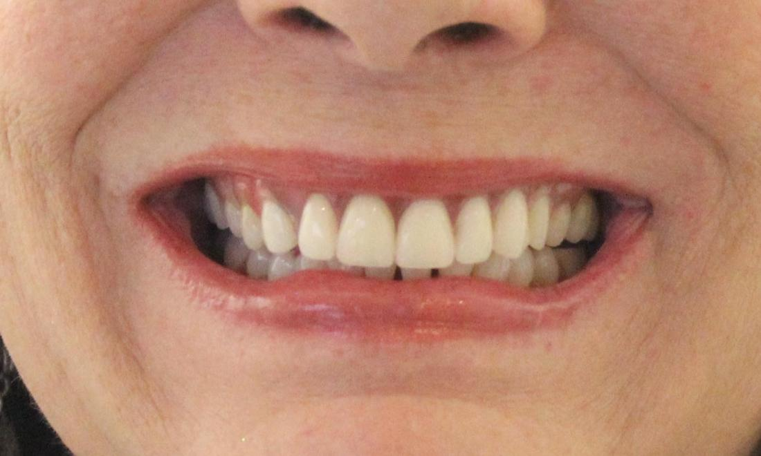image of the same teeth after a custom flexible partial denture | temple tx