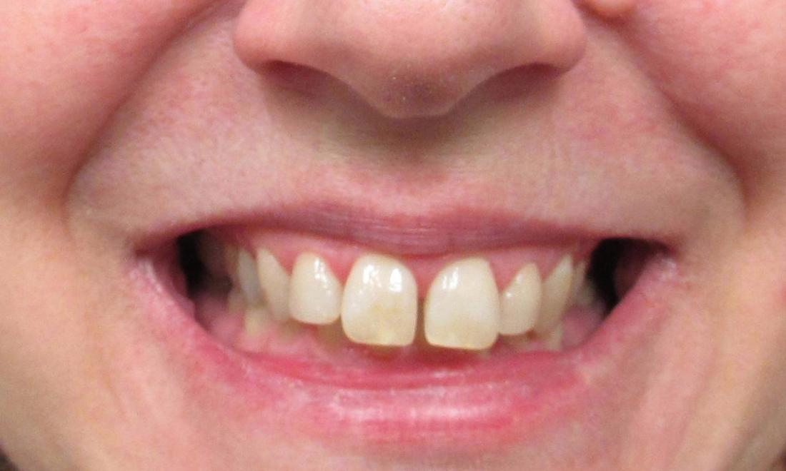 image of teeth before invisalign clear aligners | temple tx