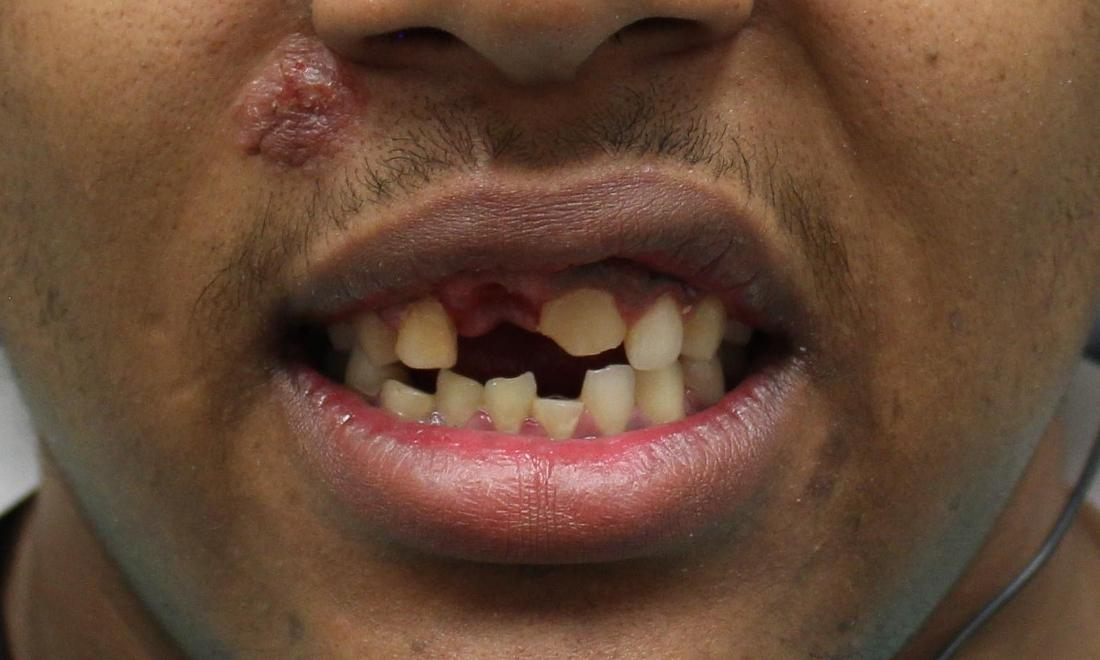 image of chipped and missing teeth following an accident | temple tx