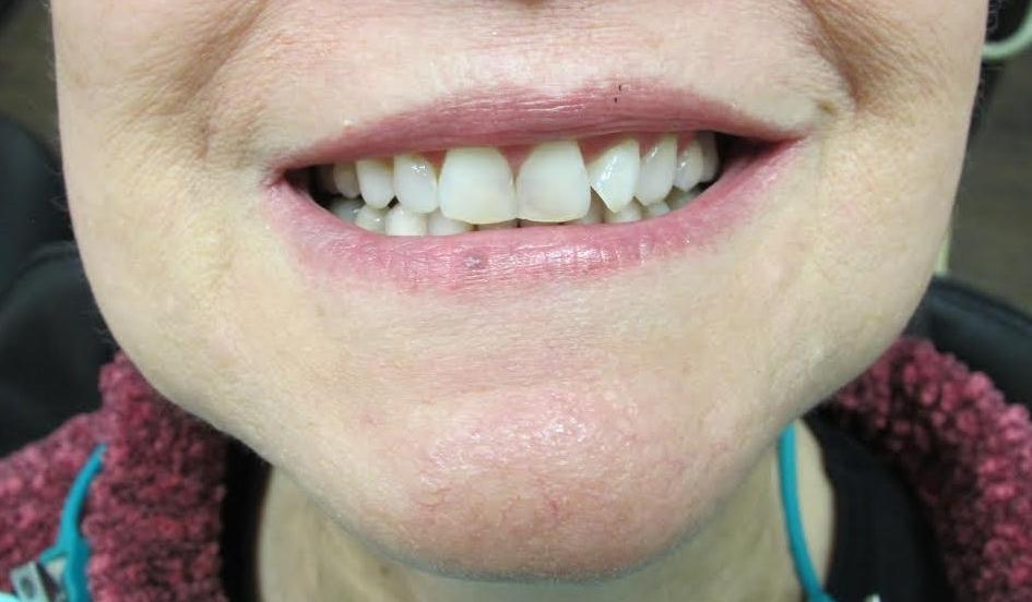 image of crooked and transparent teeth | temple tx