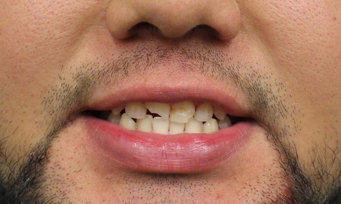 before image of discolored and chipped teeth | temple tx