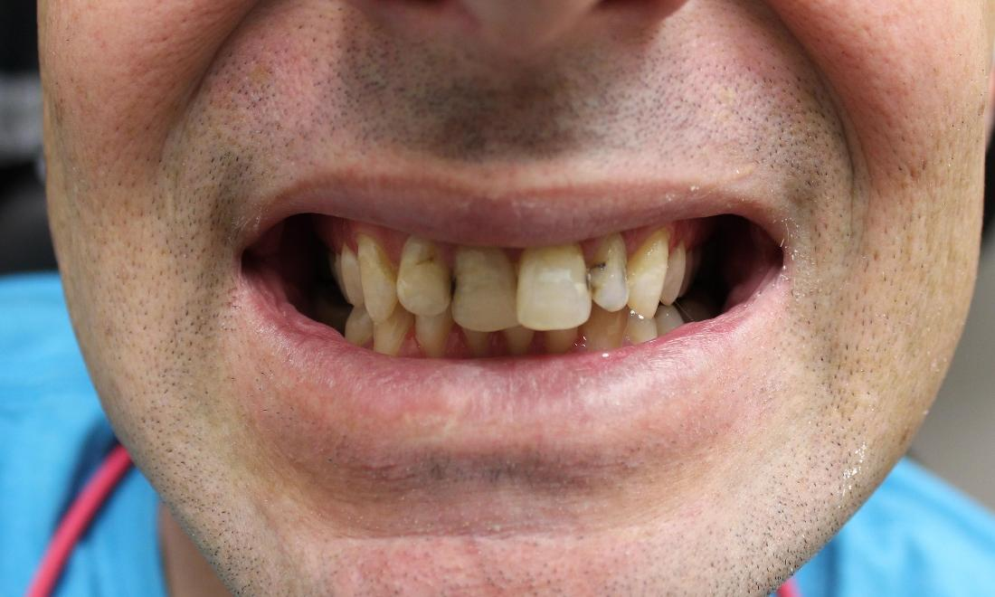 image of teeth with cavities and undesirable shape | temple tx