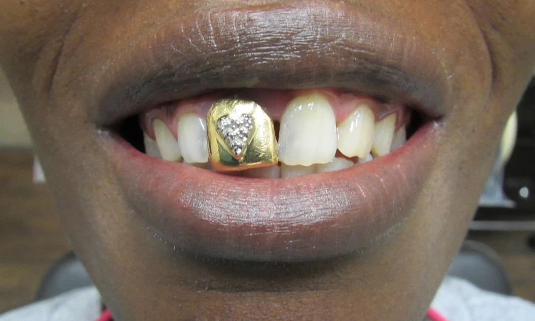 before image of teeth with a gold crown & diamond heart | temple tx