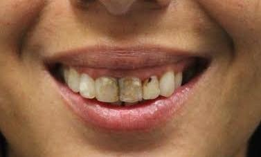 image of discolored & unhealthy teeth | temple tx