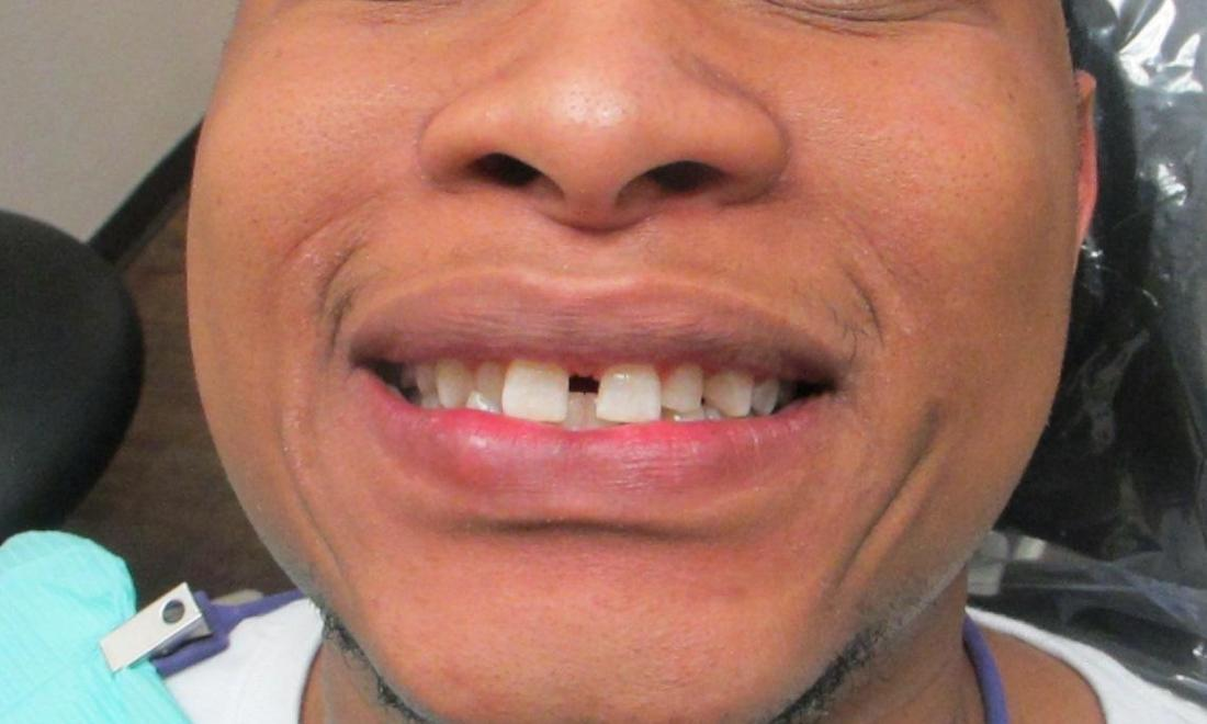 image of teeth with severe spacing | temple tx