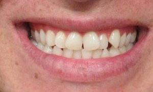image of a crooked smile before orthodontic treatment | temple tx