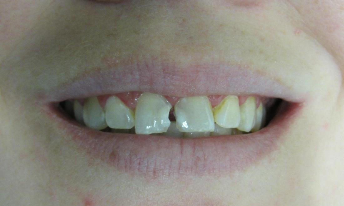 image of teeth before porcelain crowns | temple tx
