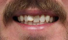 before image of a protruding front teeth effecting alignment | temple tx