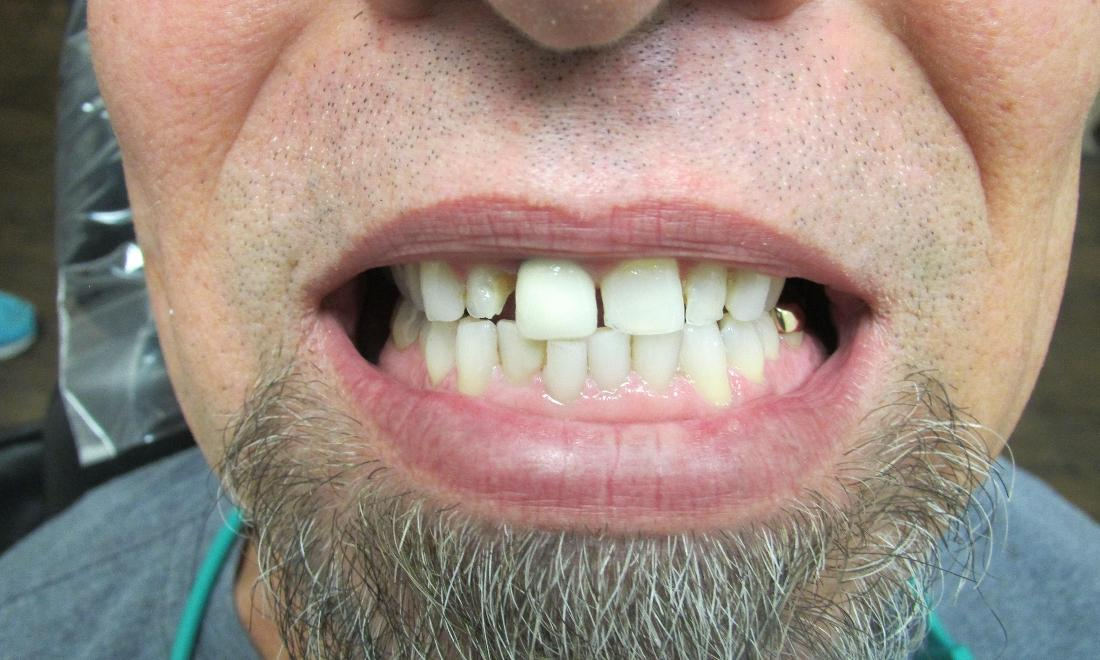 image of discolored and poorly spaced teeth | temple tx