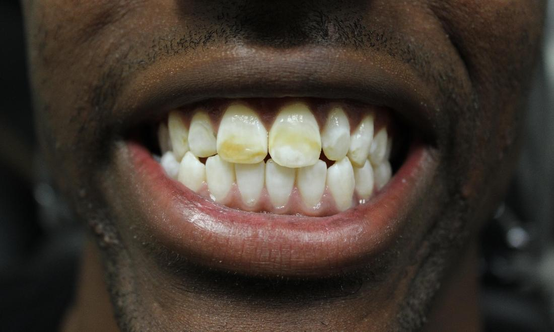 image of discolored & poorly positioned teeth | temple tx