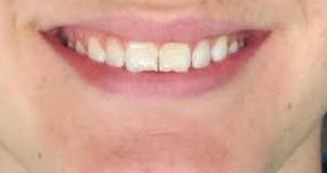 image of worn, chipped, & cracked teeth | temple tx
